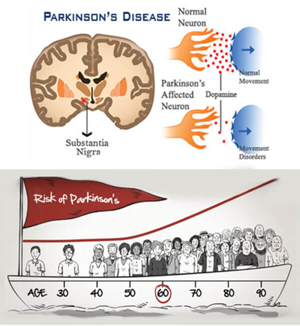 causes of parkinsons